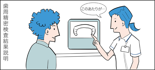 歯周精密検査